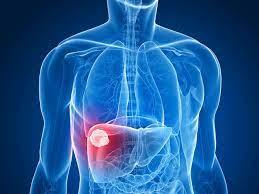 Ung thư gan dẫn đầu các bệnh ung thư ở Việt Nam